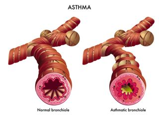 acid reflux and asthma, how does one condition cause another?, Skeleton